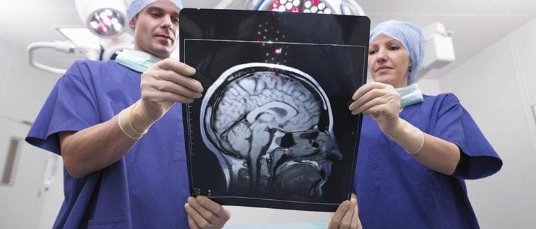 Что такое рассеянный склероз? Симптомы, стадии и лечение склероза